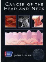 American Cancer Society Atlas of Clinical Oncology: Cancer of the Head and Neck (Book with CD-ROM)