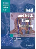 Head and Neck Cancer Imaging (Medical Radiology / Diagnostic Imaging)