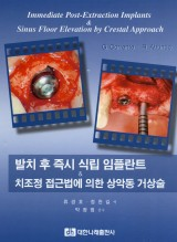 발치 후 즉시 식립 임플란트 & 치조정 접근법에 의한 상악동 거상술