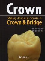Crown - Making Absolute Process in Crown & Bridge