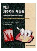 최신 치주조직 재생술( Periodontal Regeneration Enhanced-Clinical...)