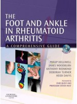 Foot and Ankle in Rheumatoid Arthritis,The - A Comprehensive Guide