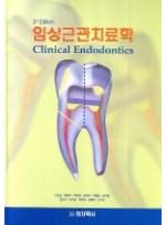 임상근관 치료학 제3판