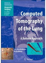 Computed Tomography of the Lung:A Pattern Approach