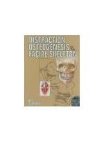 Distraction Osteogenesis of the Facial Skeleton,1/e