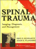 Spinal Trauma:Imaging Diagnosis & Management