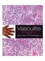 Vasculitis,2/e