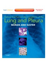 Tumors and Tumor-like Conditions of the Lung and Pleura