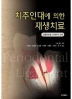 치주인대에 의한 재생치료