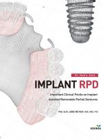 Dr. Huh`s Q&A IMPLANT RPD