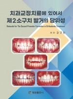 치과교정치료에 있어서 제2소구치 발거의 당위성