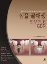 심플 골재생 (SIMPLE GBR)