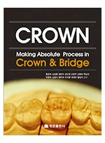 Making Absolute process in crown & bridge (개정3판)