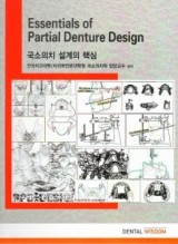 국소의치 설계의 핵심 Essentials of Partial Denture Design