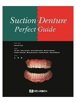 Suction Denture Perfect Guide