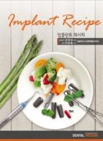 임플란트 레시피 (Implant Recipe)