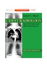 Chest Radiology, 6/e