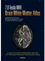 7.0 Tesla MRI Brain White Matter Atlas (번역서)