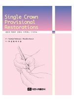 Single Crown Provisional Restorations