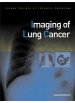 Imaging of Lung Cancer(군자)