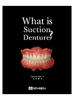 What is suction denture