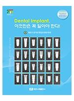 (Implant 임상지침서) Dental Implant 이것만은 꼭 알아야 한다!