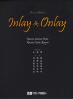 Inlay & Onlay 2nd Edition
