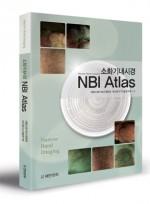 소화기 내시경 NBI Atlas