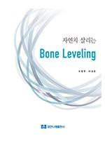 자연치 살리는 Bone Leveling