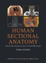 Human Sectional Anatomy Pocket Atlas of Body Sections, CT and MRI Images [Paperback]  3th