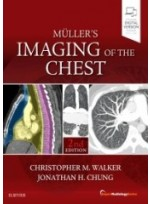 Muller's Imaging of the Chest, 2/e