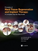 Principles of Hard Tissue Regeneration and Implant Therapy: A complete Step-By-Step Guide
